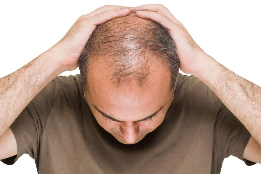REVERSE HAIR LOSS FOR GOOD WITH RED LIGHT THERAPY